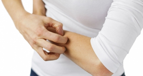 Eczema and How to Treat