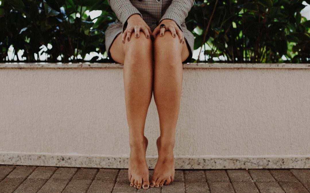How to Help Varicose Veins without Medical Intervention
